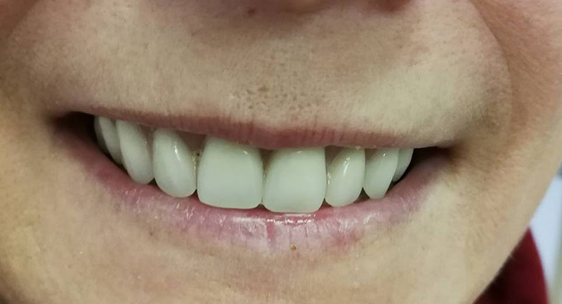 Clients denture smile