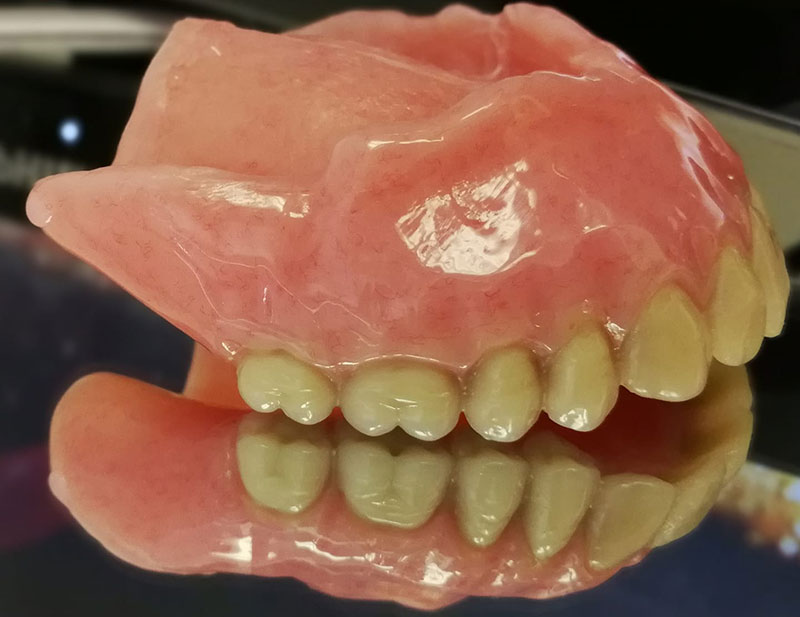 Top set of dentures