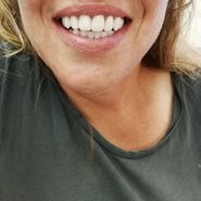After: denture replacement
