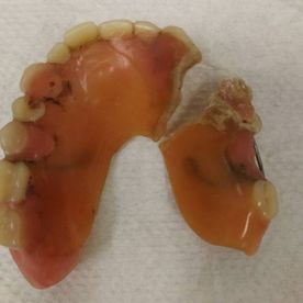 Before: Denture repair