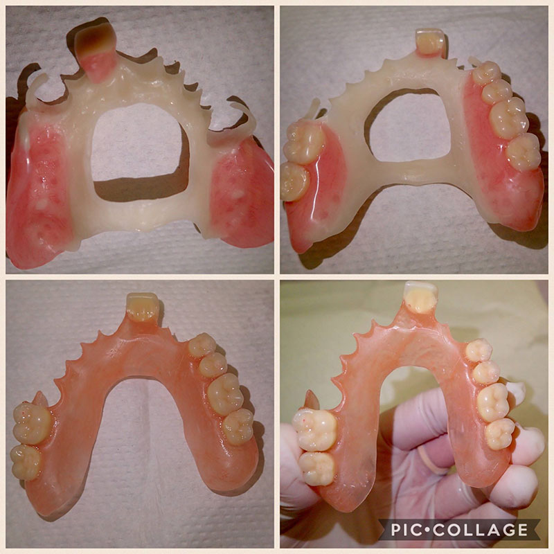 Partial dentures collage