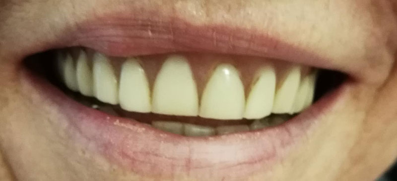 Before: existing dentures