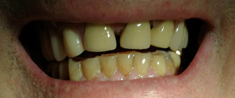 After: Denture repair